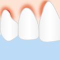 Zahnfleischentzündung  (Foto: zuckerschnute)