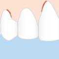 Zahnfleischbluten  (Foto: zuckerschnute)
