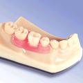 Valplast Zahnersatz