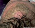 Dermatitis Seboreica, Dermatologia