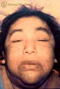 Coma Mixedematoso, Hipotiroidismo Complicado