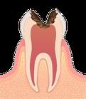 虫歯の進行度C3 歯髄に達するう蝕