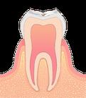 虫歯の進行度CO