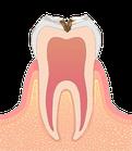 虫歯の進行度C2 象牙質う蝕