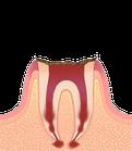 虫歯の進行度C4 残根歯