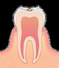 虫歯の進行度C1 エナメル質限局う蝕