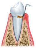 歯周病 P2