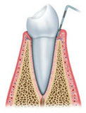 歯周病 P1