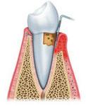 歯周病 P4