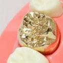 八戸市 くぼた歯科医院 セラミック メタルフリー おすすめ 審美 自費 自由診療