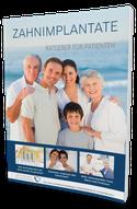 Klicken Sie hier, um sich den kostenlosen Implantat-Ratgeber herunterzuladen!