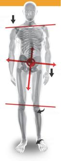 骨格矯正 体の歪みについて イメージ画