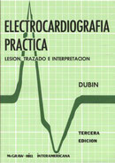 EKG Dubin
