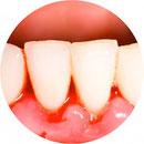 Was ist eine Parodontitis und wie entsteht sie? Ursachen, Symptome und Diagnose