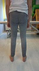 Rehabilitacja kolano koślawe: pełna korekcja wady postawy.