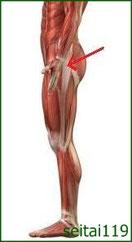 スポーツ選手に大転子滑液胞炎が発病しやすい