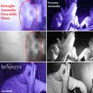 9 - Confronto Anomalia Mano-Foto Normale
