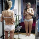 maladie anorexie