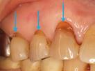 八戸市 くぼた歯科 歯ぎしり 顎関節症、マウスピース