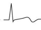 EKG T-Welle biphasisch 1