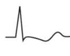 EKG T-Welle biphasisch 2