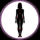 Essure-effets-indésirables-clips-de-filshies-douleurs