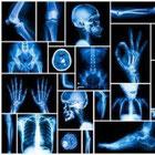 Risonanze Magnetiche, RM, RMN, Tac, TC, Moc, Mammografi, Telecomandati, Dr, Flat Panel, Usati