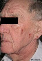 Eczema du visage a des plantes