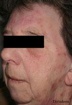 Eczema du visage apres une coloration des cheveux
