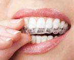 Zahnstellungskorrektur in kurze Zeiten mit durchsichtigen Schienen ( ©  duskbabe - Depositphotos )