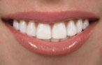 Schöne weiße Zähne durch Bleaching ( © BVDC01 - Depositphotos )