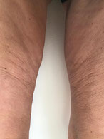 HIFU Behandlung Oberschenke, Shape System Aarau