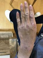 アトピー性皮膚炎のイメージ画像