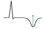 EKG T-Welle negativ