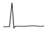 EKG T-Welle abgeflacht