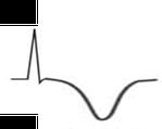 EKG T/U-Welle negativ