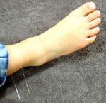足に針治療