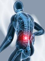 Zdjęcie anatomiczne przedstawiające ból dolnego odcinka kręgosłupa