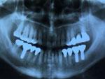 たかす歯科クリニック検査