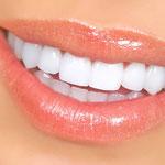 Bleaching, Zahnaufhellung, weiße Zähne, Veneers, weiße Füllungen, Keramik in Augsburg in Ihrer Nähe(© Kurhan - Fotolia.com)