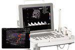超音波画像検査機