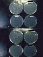 下部三個のシャレーがワキガ原因菌の抑制を証明しています