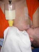 Pumpstillen: Muttermilch wird AN der Brust zugefüttert