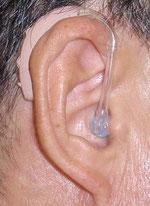 耳かけ型補聴器装着時