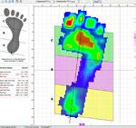 Digitale Fußvermessung mit 1/3 Teilung