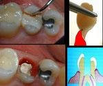 Zahnfraktur eines wurzelbehandelten Zahnes. Wurde gezogen.