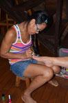 Karin bekommt von Wadee neue Füße
