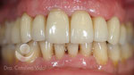 Después: tratamiento terminado. Rehabilitación cerámica sobre dientes e implantes