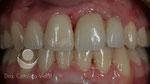Después: coronas cerámicas colocadas sobre los implantes