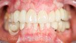 Después: rehabilitación con coronas sobre implantes y dientes terminada